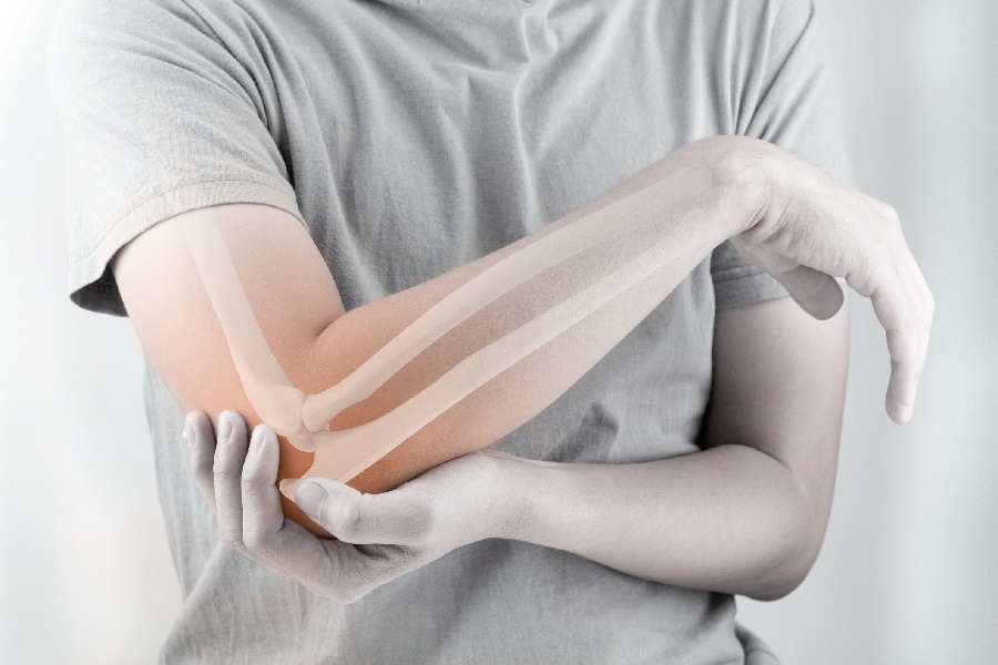 How Does Tendonitis Affect You?