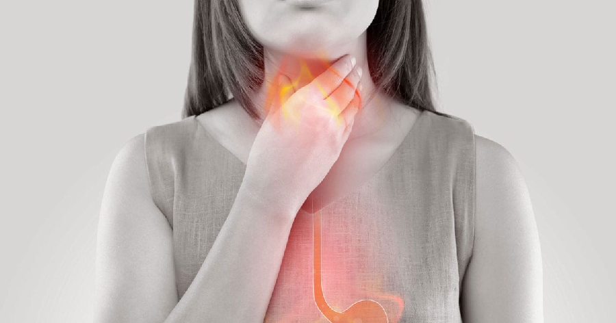 What is Barrett's esophagus and its causes?